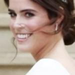 ユージェニー王女 結婚式で見せた傷痕の画像がヤバい.......
