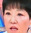 和田アキ子 整形検討で目の違和感の謎が解けた........画像あり